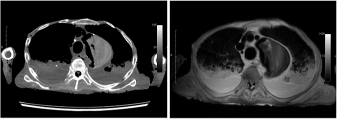 CT image (left) and MR image (right) of a cadaver chest for anatomical study