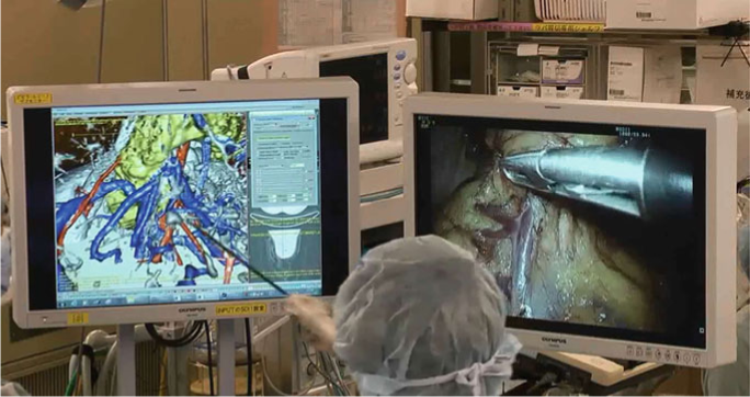 Example of surgical navigation based on synchronized display