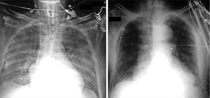 Bedside application of chest X-ray in intensive care unit patients