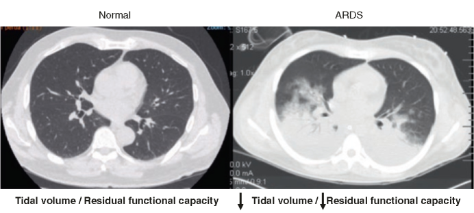 Normal thoracic tomography versus ARDS thoracic tomography (Reprinted with permission from Medical Evidence Percorso Formativo 2015, yr. 8, n. 104, www.ati14.it)