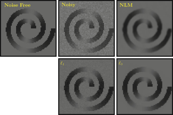 Comparison of denoised DW images given by different methods (u = 5)