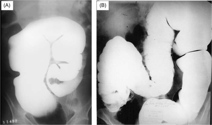 Chagasic megacolon. (A) Dilatation is mainly at the rectum and sigmoid. (B) Total megacolon (rare)