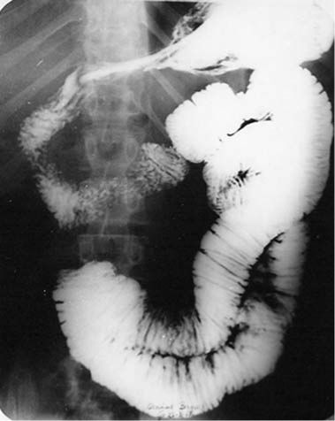 Megajejunum in a patient with megaesophagus of group II