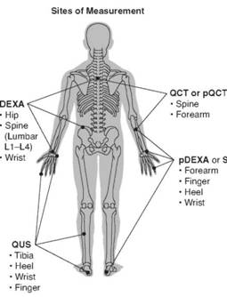 Sites in the body measured by different BMD tests. Courtesy of the National Association of Nurse Practitioners in Women's Health (NPWH).